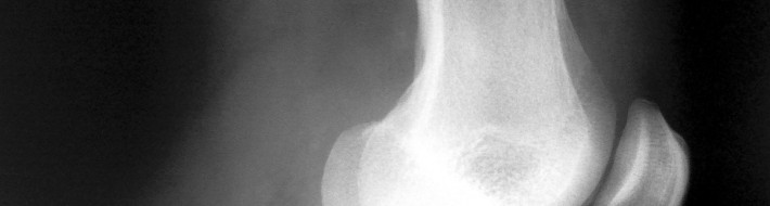 knee xray side view