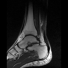 MRI of Tendon